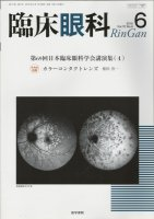 臨床眼科 Vol.70 no.6 (2016) 第69回日本臨床眼科学会講演集[4]